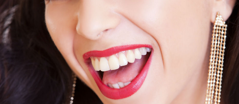 girl-white-teeth-smile