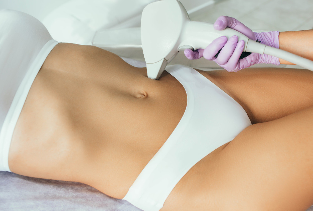 beautician removes hair on beautiful female body using a laser. hair removal on the body, laser procedure at clinic