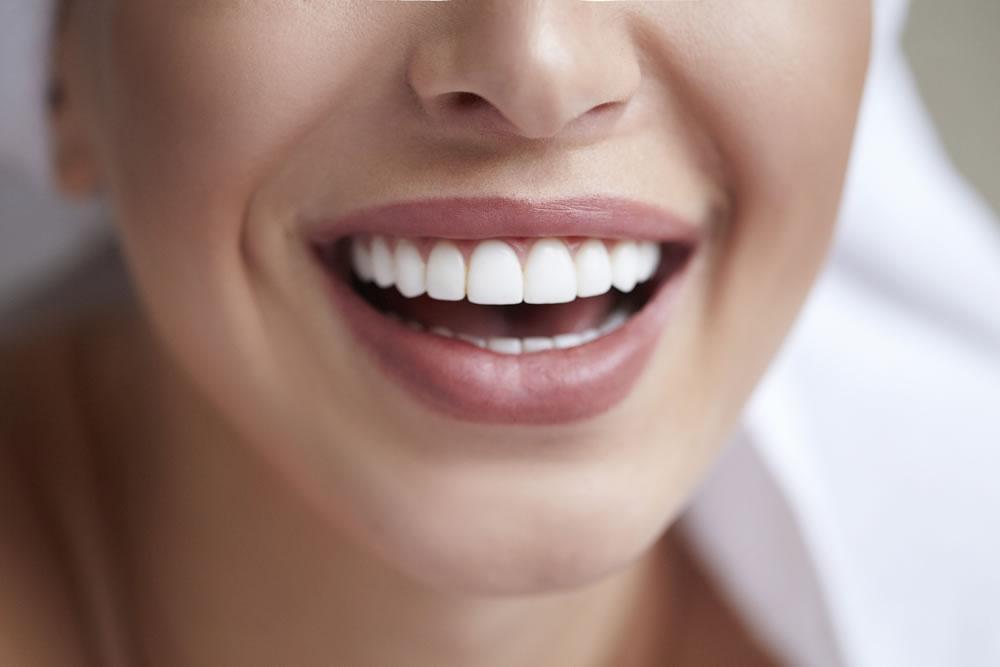 bigstock-Healthy-White-Smile-Close-Up--280697836