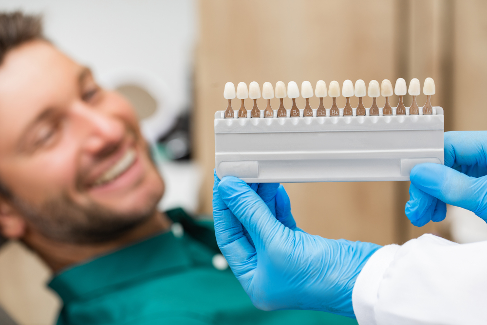palette tooth color sample to determine shade over patients teeth